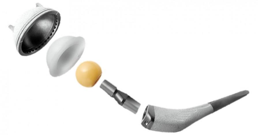 Immagine che ritrae la protesi d'anca scomposta nelle sue componenti.